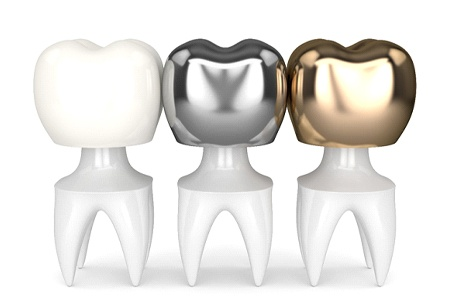 Different types of dental crowns