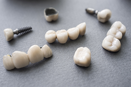 Implant restorations before treatment